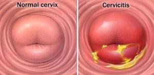 20100323_pbv_cervicitis1_